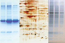 Dyes, Ions, or Fluorescent Stains: What Are the Best Ways to Visualize Protein In Gels?