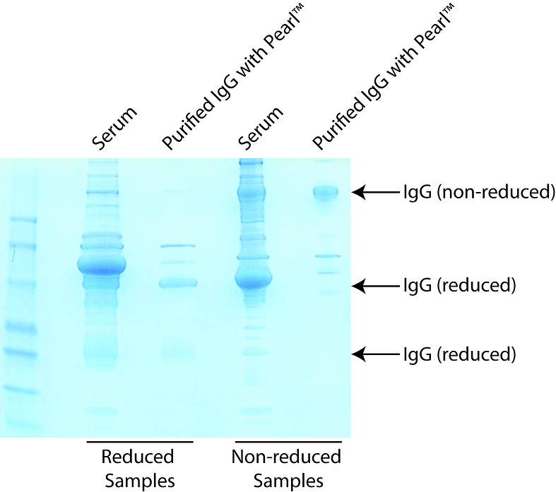 Remove BSA & Gelatin from Antibody Solutions for Antibody Labeling