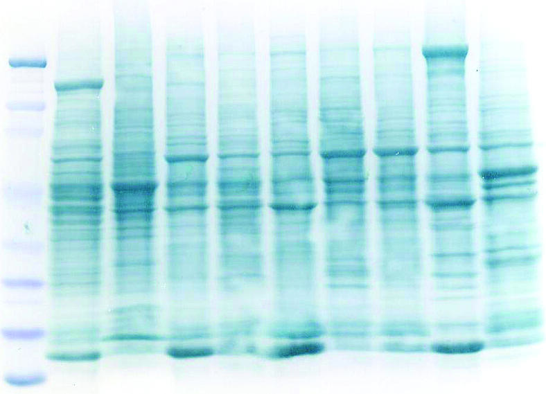 Best Methods to Stain Proteins After Protein Electrophoresis