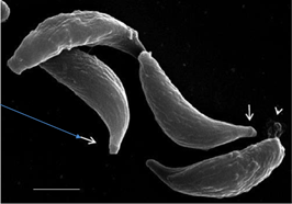 How the cilium became a 'villain' in Apicomplexan parasites?