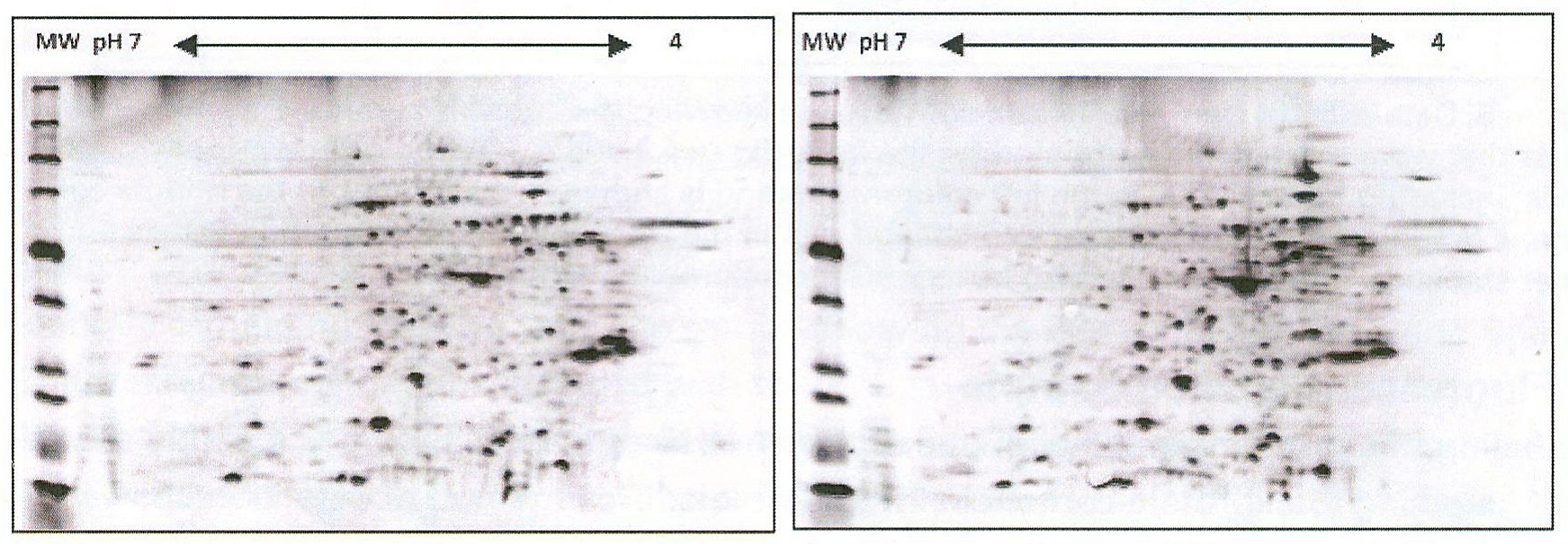 Western Blot Blocking: Tips and Tricks for Blocking Agents